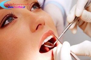 اعصاب کشی دندان های عقل