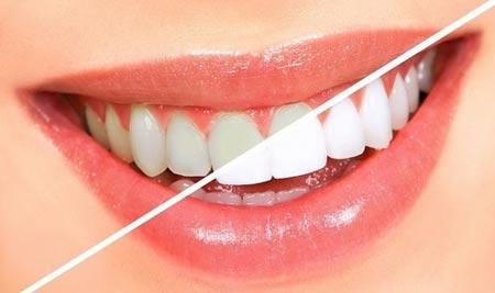 سفید کردن دندان ها بدون هزینه در خانه