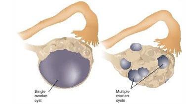 نقش تغذیه در کیست تخمدان